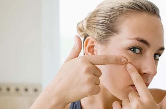 Los mejores pastillas y cremas para el acné. Preparaciones eficaces para las espinillas - Ranking de productos 2019